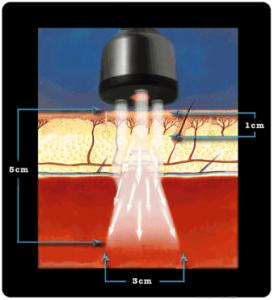 microlightimage2-274x300
